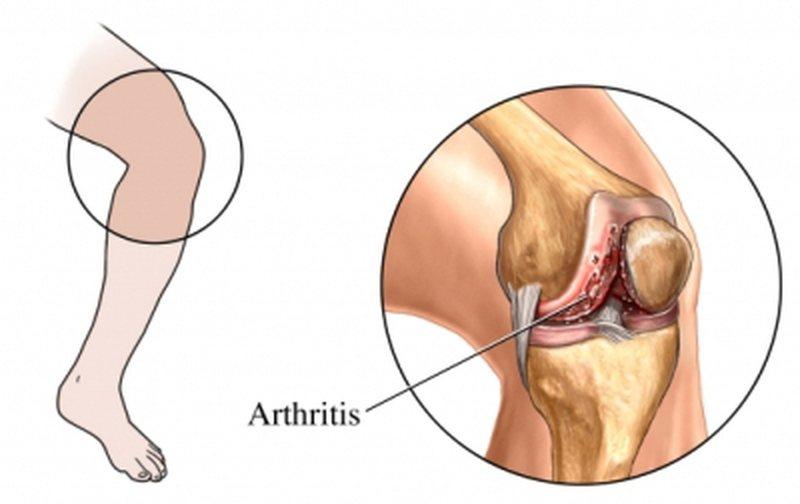 artroze qka eshte)