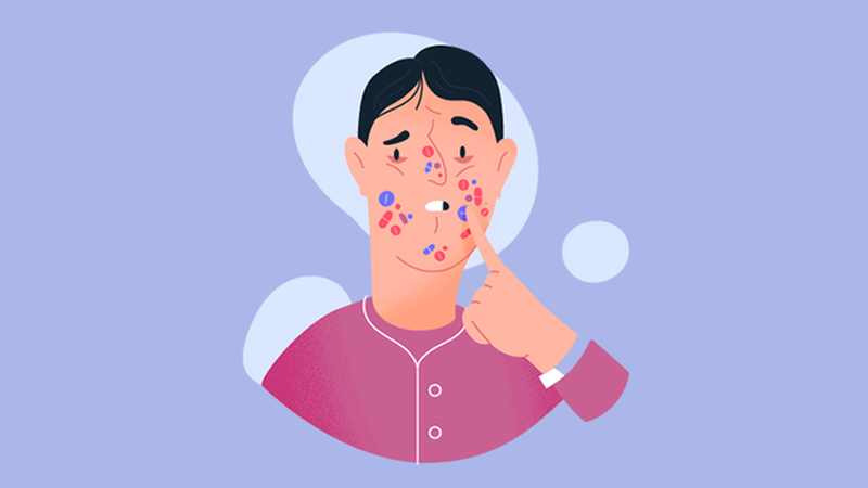 Get acquainted (gain, obtain) with present-day techniques that came from Acne