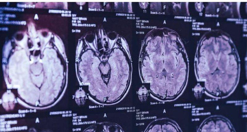 Një sëmundje e panjohur? Simptomat e mistershme në tru habisin