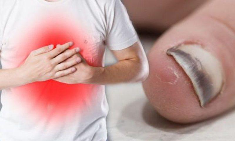 Si mund ta mbani nën kontroll presionin e lartë të gjakut?