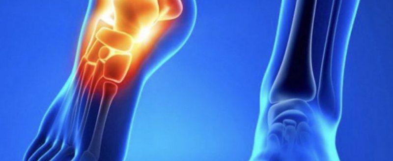 Ndikimi i reumatizëm tek kyçet e këmbëve, kurat natyrale