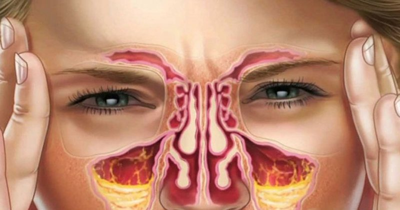 Get rid of sinusitis, in a few minutes, with apple cider vinegar and lemon